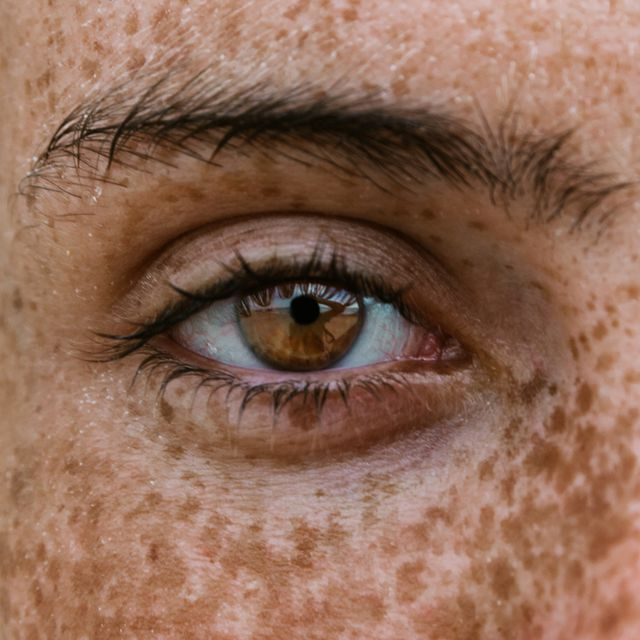can coronavirus affect your eyesight   story illustrated by a picture of a freckly woman's eye
