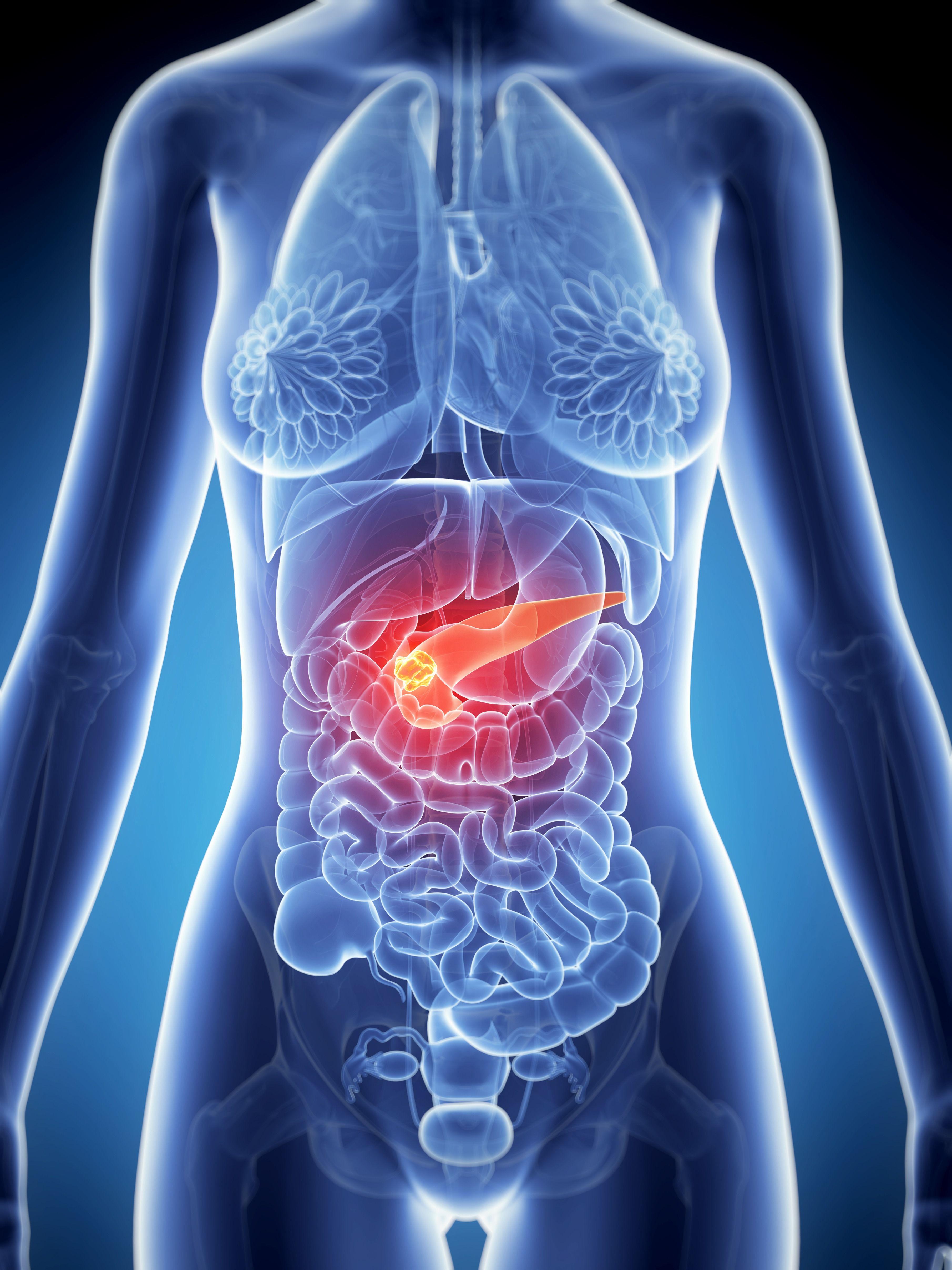 pancreatic cancer tumor
