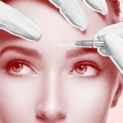 treating forhead wrinkles