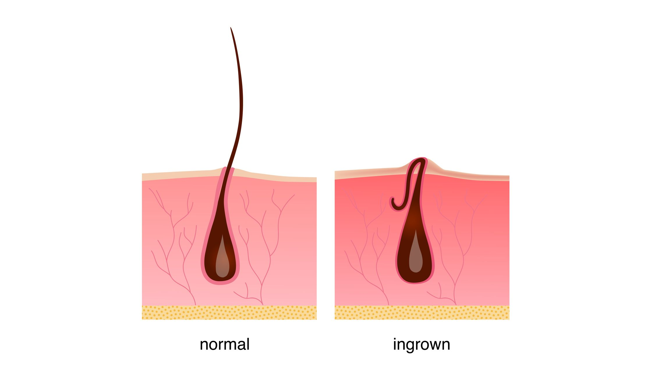 Ingrown hair after shaving, cream or epilator. Anatomy infographics