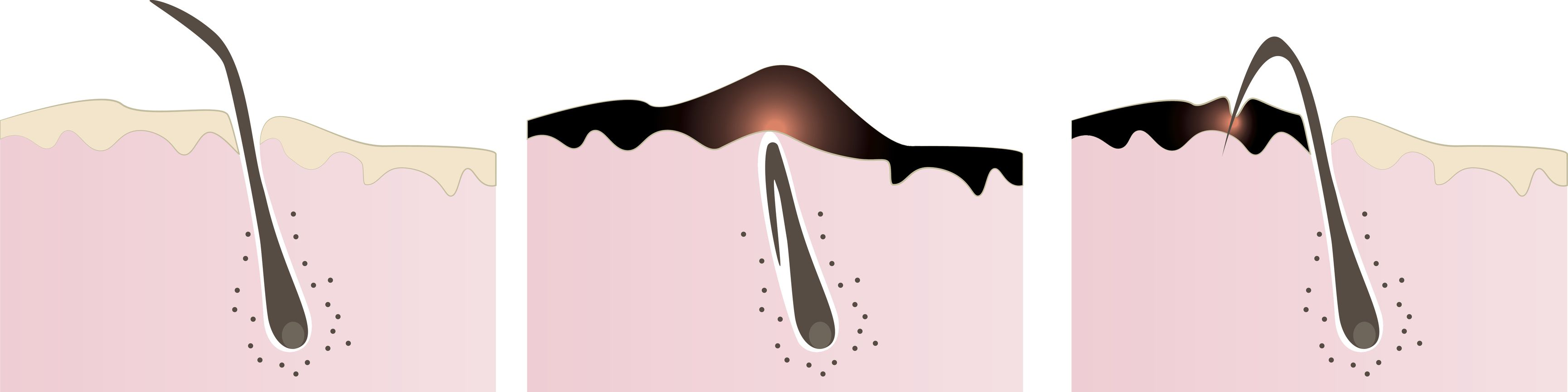ingrown pubic hair when shaving