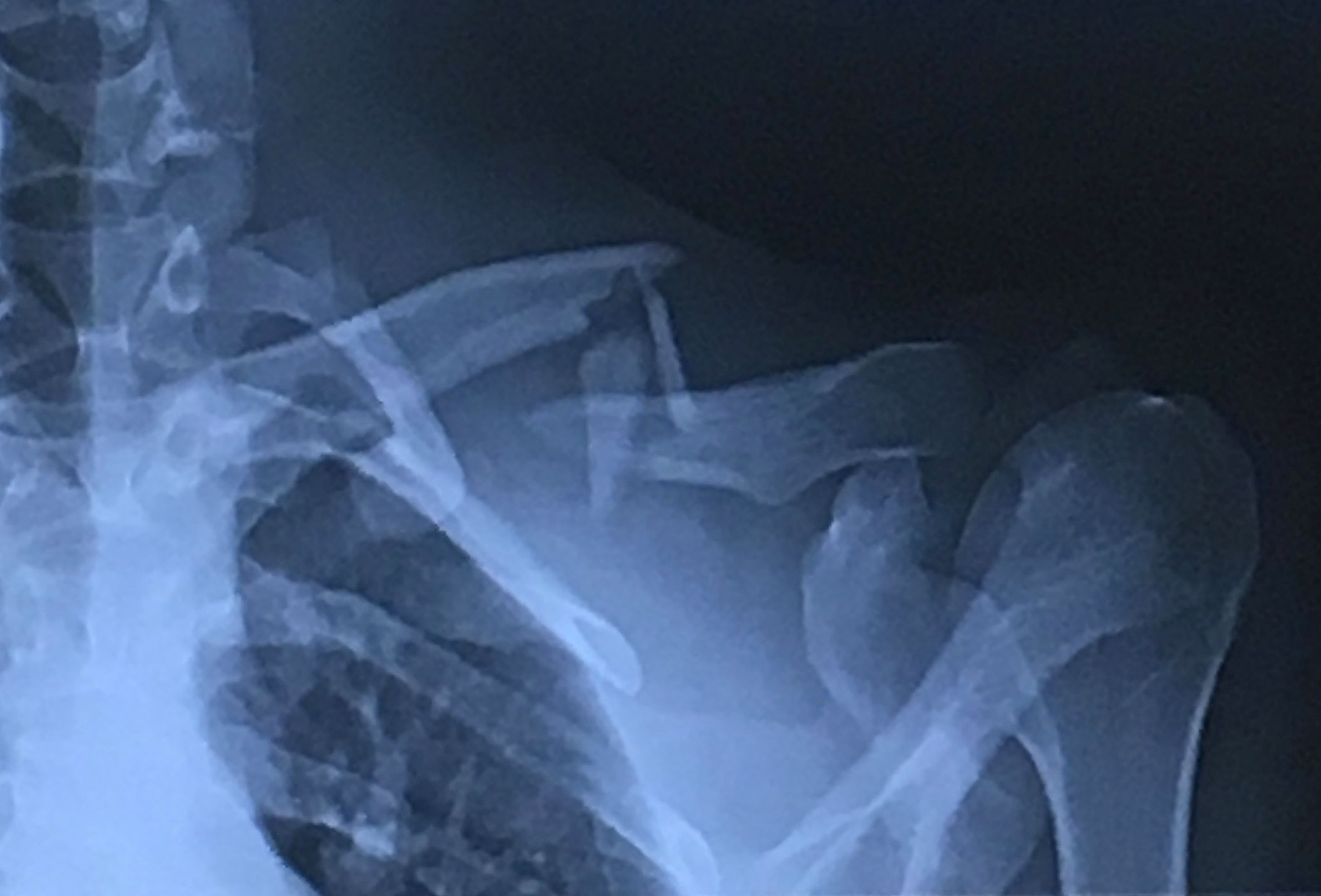 Full frame of an x-ray image of a human shoulder with a broken clavicle or collarbone