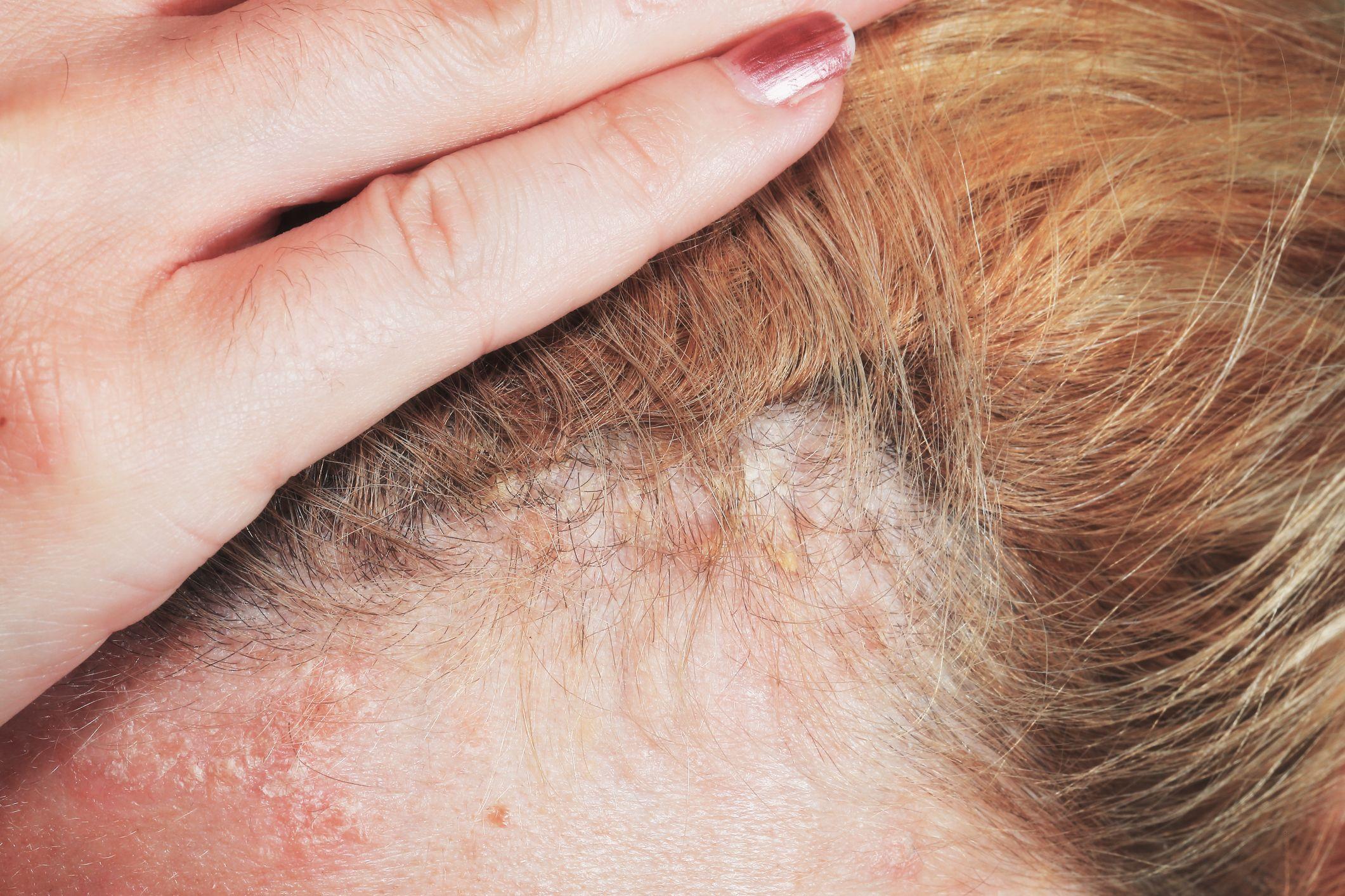 Hair psoriasis