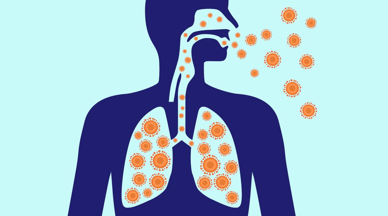 pneumonia causes