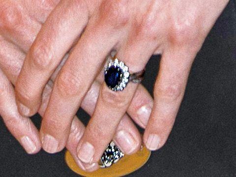 Finger, Skin, Nail, Jewellery, Nail care, Nail polish, Ring, Purple, Fashion accessory, Thumb,