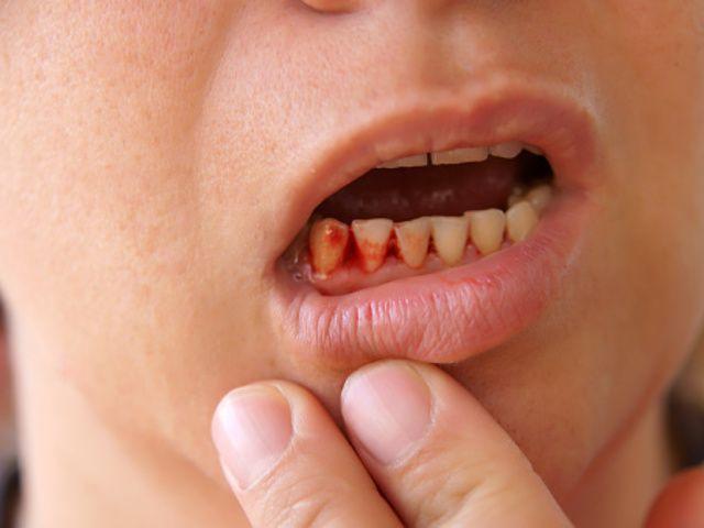 腫れる 虫歯 歯茎