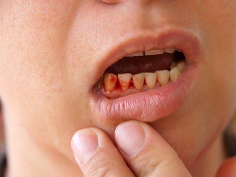 夜 に なると 歯 が 痛い