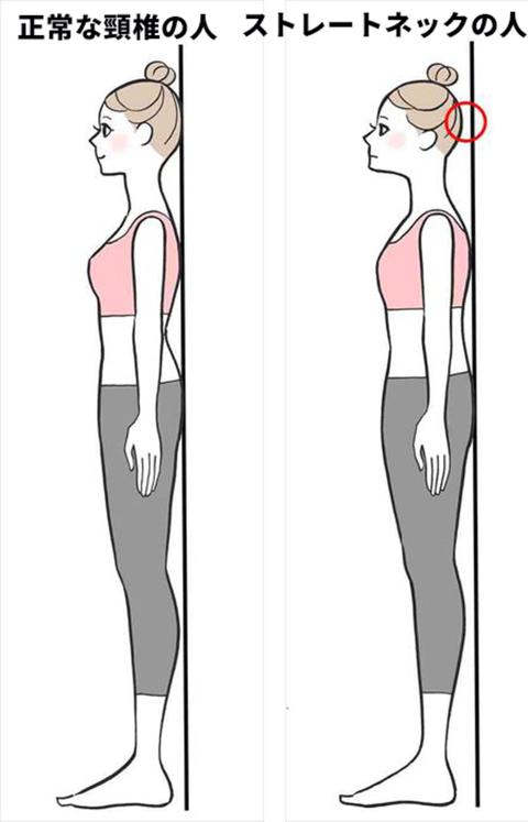 Leg, Standing, Human leg, Joint, Shoulder, Arm, Knee, Human, Human body, Design,