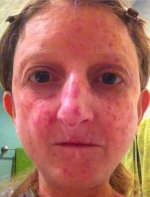 Women with Rare Skin Conditions - Women Speaking Out Against