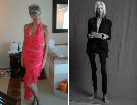 The Rare Disease That Made This Woman Slowly Starve to Death