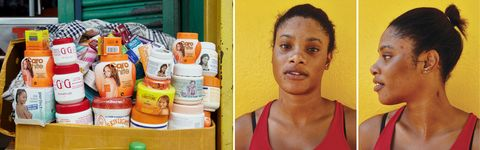 Skin Bleaching How And Why These Black Women Bleach Their Skin