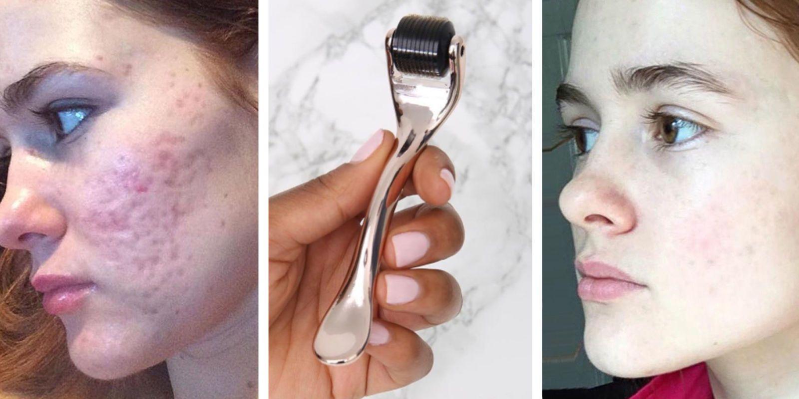 skinroller acne