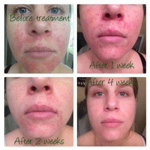eczema cream for face reddit)