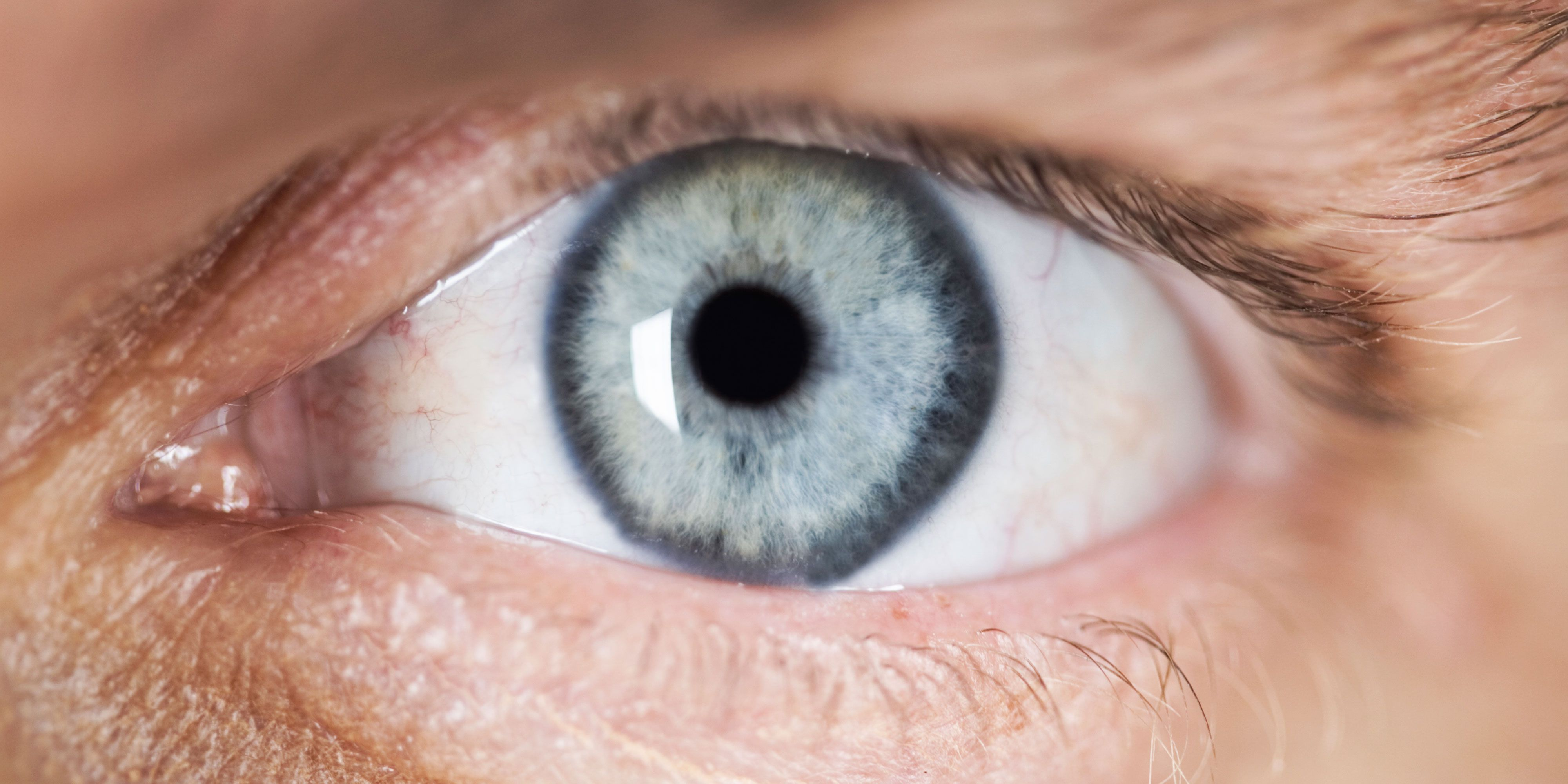 Ive Got A Black Spot In My Eye