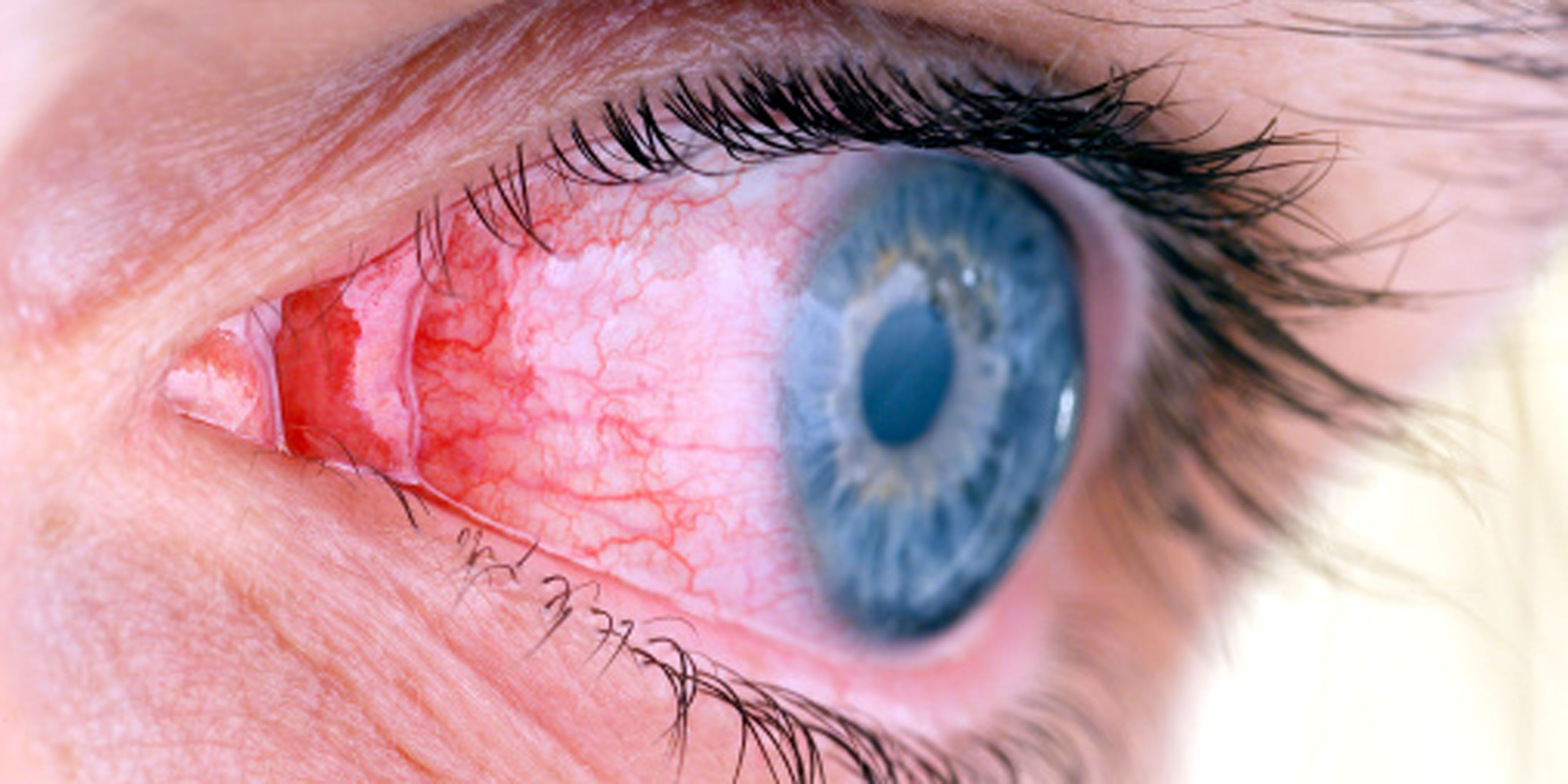 How to treat conjunctivitis without risk to health 74