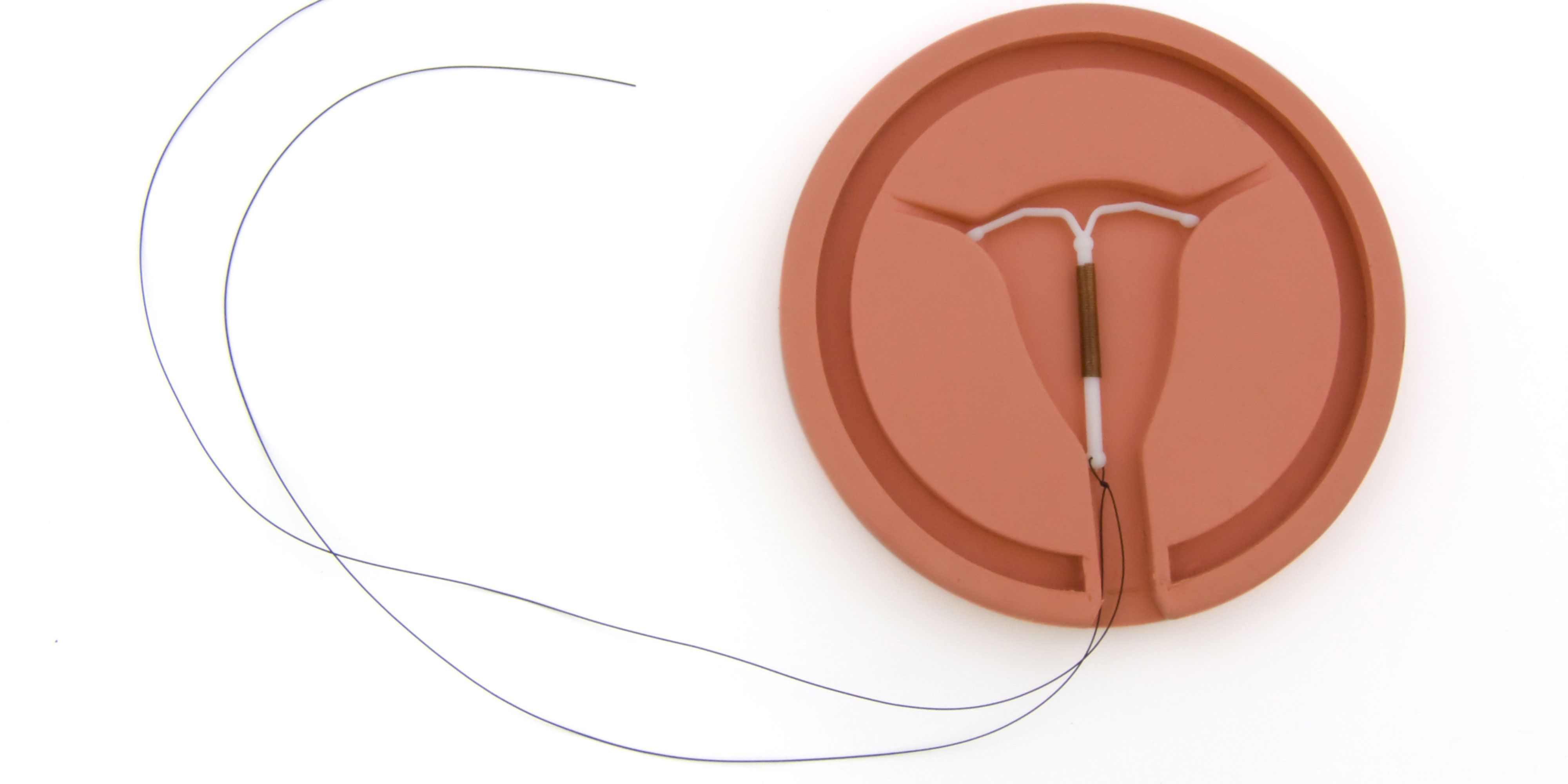 Abortive means: intrauterine devices 96