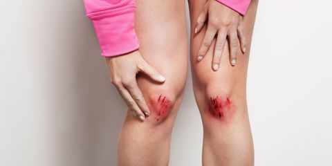 woman with bloody knees reaching down in pain