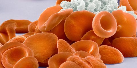 Blood clotting. Coloured scanning electron micrograph (SEM) of human red blood cells (erythrocytes, red) and platelets (thrombocyte, white) forming a blood clot.