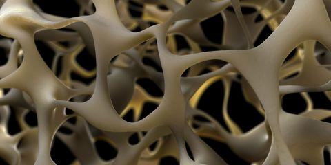 Osteoporotic bone, artwork