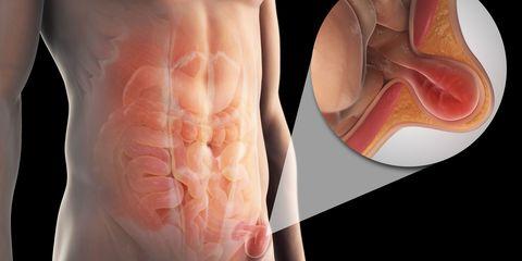 Skin, Joint, Peach, Orange, Amber, Organ, Neck, Human anatomy, Muscle, Medical,