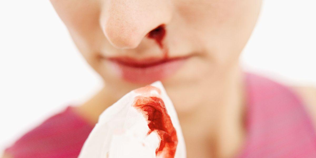 Naseptin nasal cream (chlorhexidine, neomycin): use and side