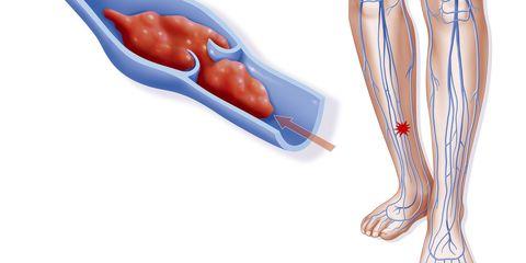 Red, Organ, Peach, Human anatomy, Nerve, Blood vessel, Vein,