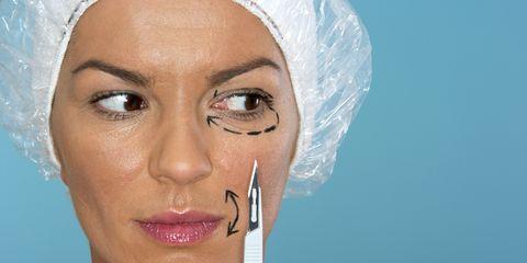 Eye lift (blepharoplasty)