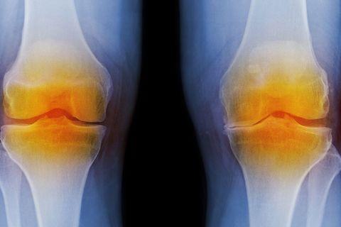 x-ray of arthritic knees