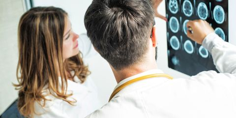 Male and female doctor looking at brain scan