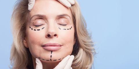 women having cosmetic surgery face lift