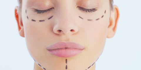 cosmetic surgery woman with lines on face