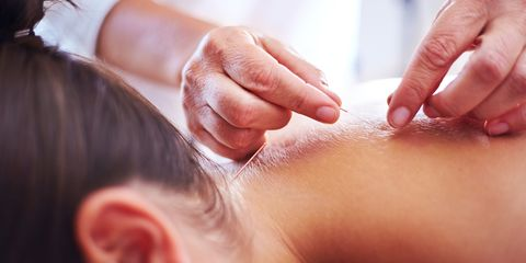 Acupuncture being done on woman's upper back