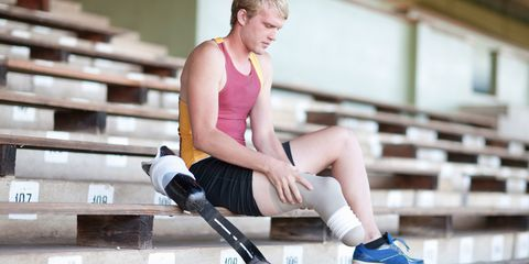 Man with a prosthetic limb
