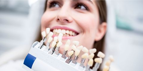 9 things you need to know before getting your teeth whitened