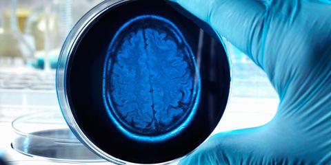 Brain scan in culture plate
