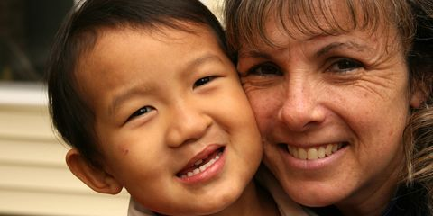 Little boy with cleft lip and his mother