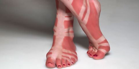 sunburnt feed tan lines from gladiator sandals