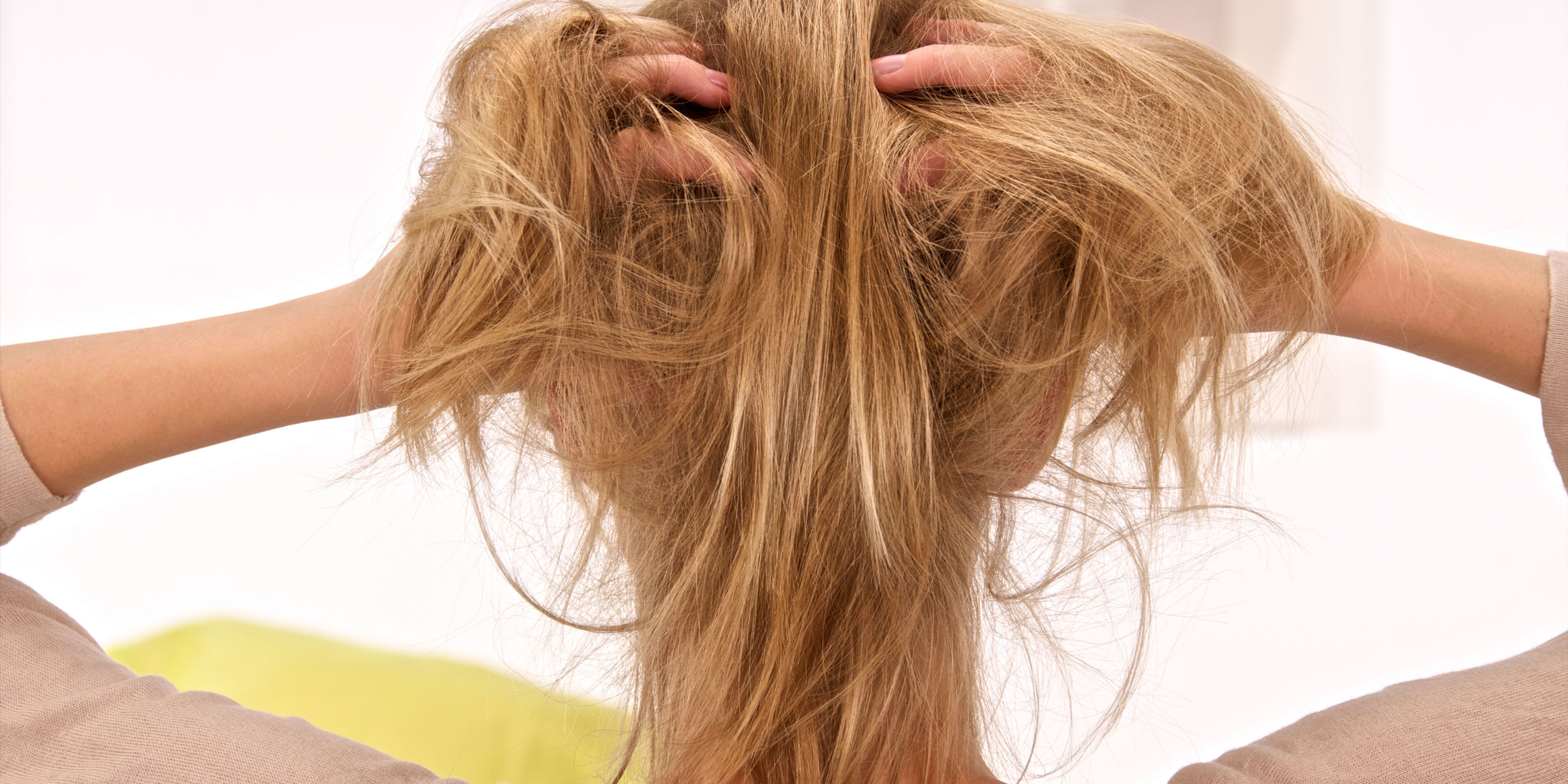 Scalp Psoriasis A Dermatologist Explains The Best Way To Treat