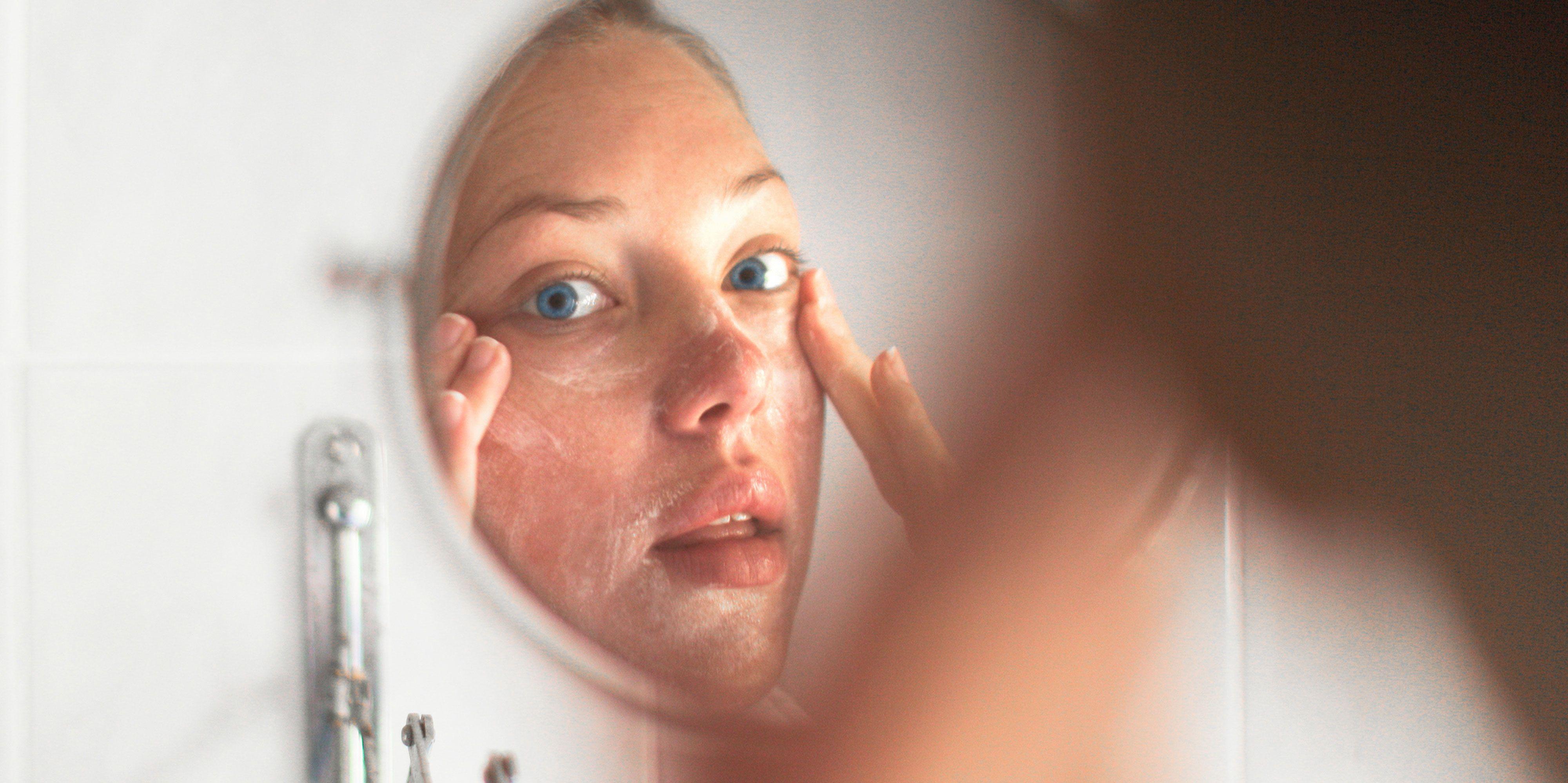 OFELIA: Acne adult care skin