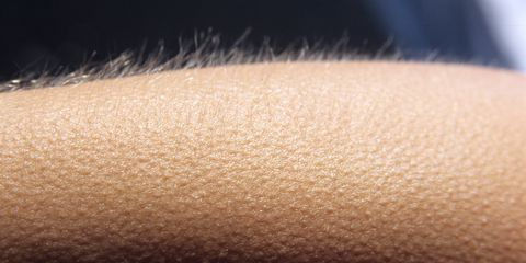 Does music give you goosebumps? Your brain could be wired differently, study suggests