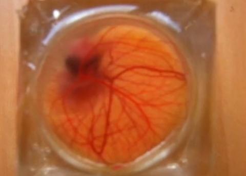 Orange, Amber, Organ, Peach, Blood vessel,