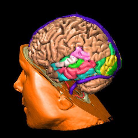Chin, Forehead, Colorfulness, Brain, Organ, Muscle, Human anatomy, Purple, Brain, Magenta,