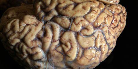Organ, Brain, Colorfulness, World, Close-up, Symmetry, Brain, Macro photography, Human anatomy, Science,