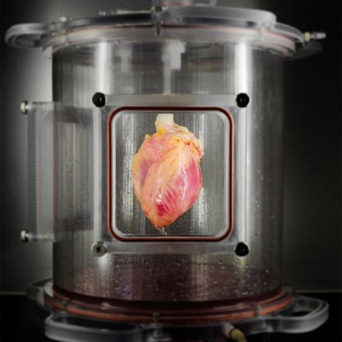 Scientists Have Grown Human Heart Tissue from Skin Cells