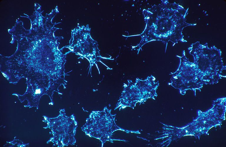Bad Luck Causes Most Cancer, New Study Finds