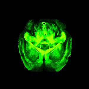 Mapping the Brain in Unprecedented Detail