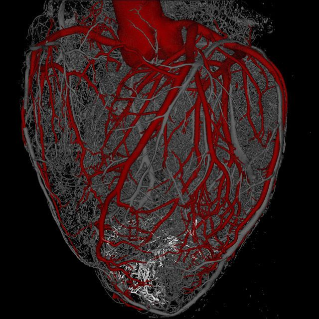 Stem Cells Regenerate Heart Muscle in New Study