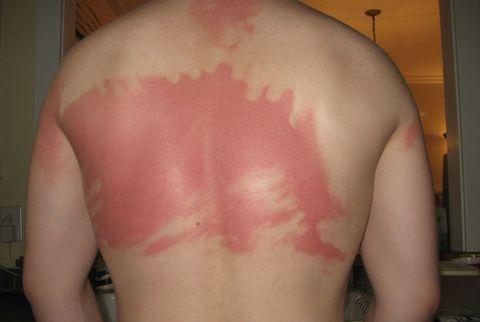 Anatomy of a Sunburn - A Timeline of Dermatological Destruction