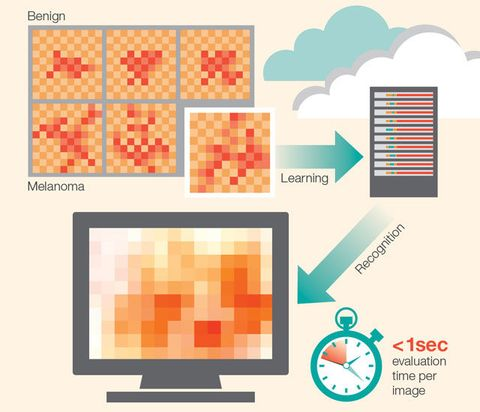 Hospitals Are Getting IBM's Skin Cancer Detection System