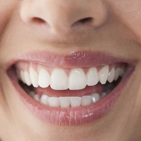 Woman smiling teeth